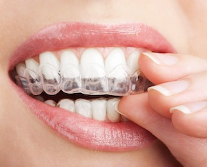 Invisalign And You