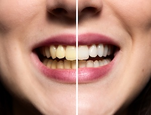 Don't Let Tooth Discoloration Stop You From Smiling
