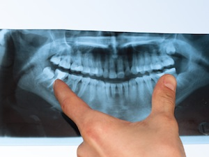 Dental X-Rays Are Safer Than You Think