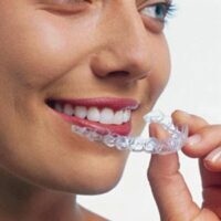 Invisalign® Gives You The Comfort And Confidence You've Been Looking For