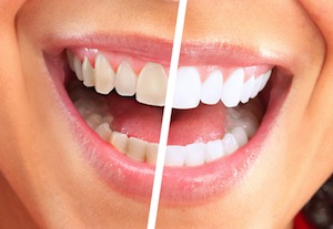 What Causes Tooth Discoloration?