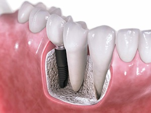 Dental Implants Look, Feel, and Function Like Natural Teeth