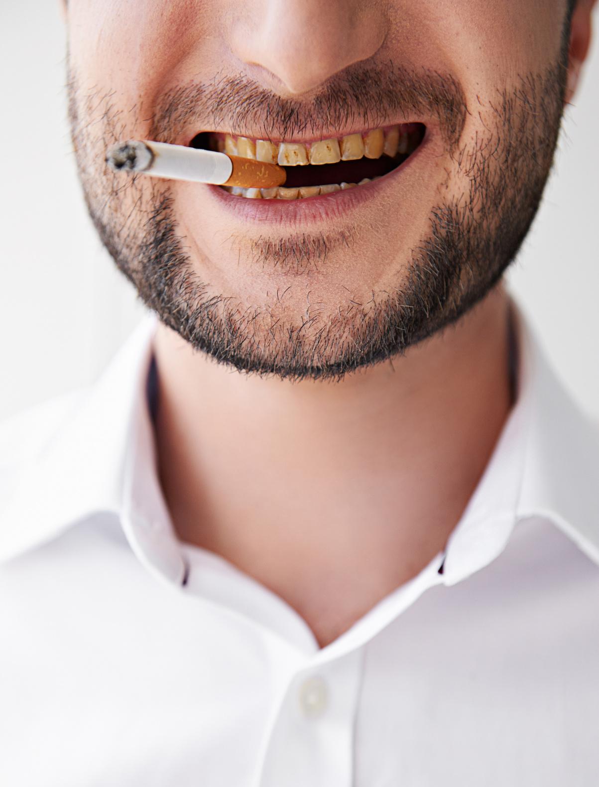 Smoking and dental care