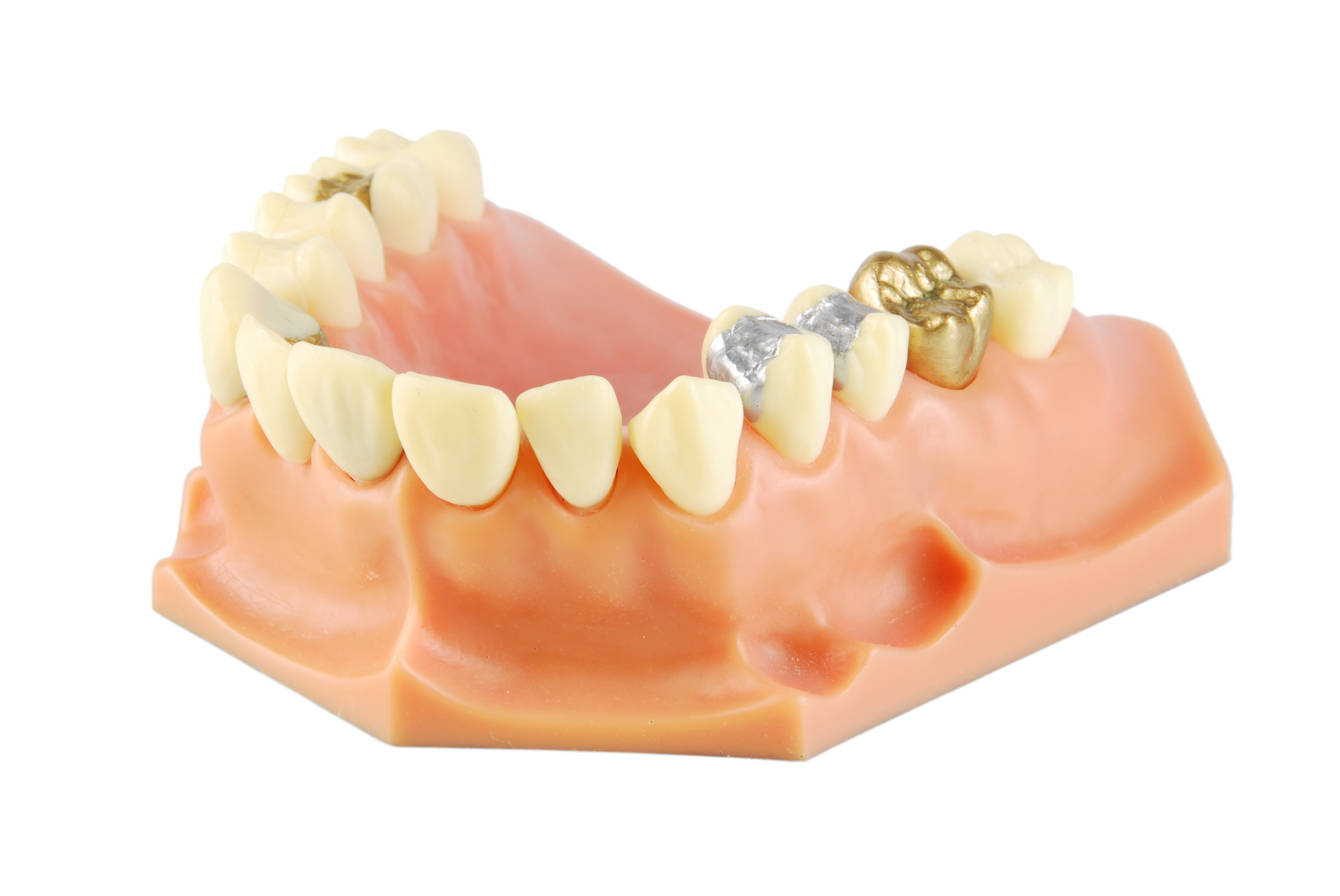 Porcelain is worth more than silver when it comes to your smile!