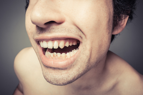 The Effects of Poor Dental Hygiene on Your Body:  Halitosis