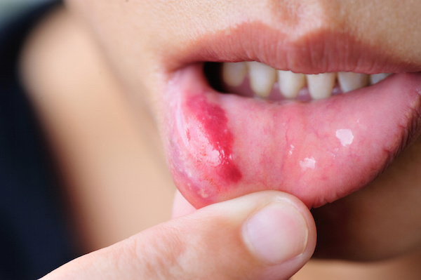 Woman show her lower lip of the mouth with injury