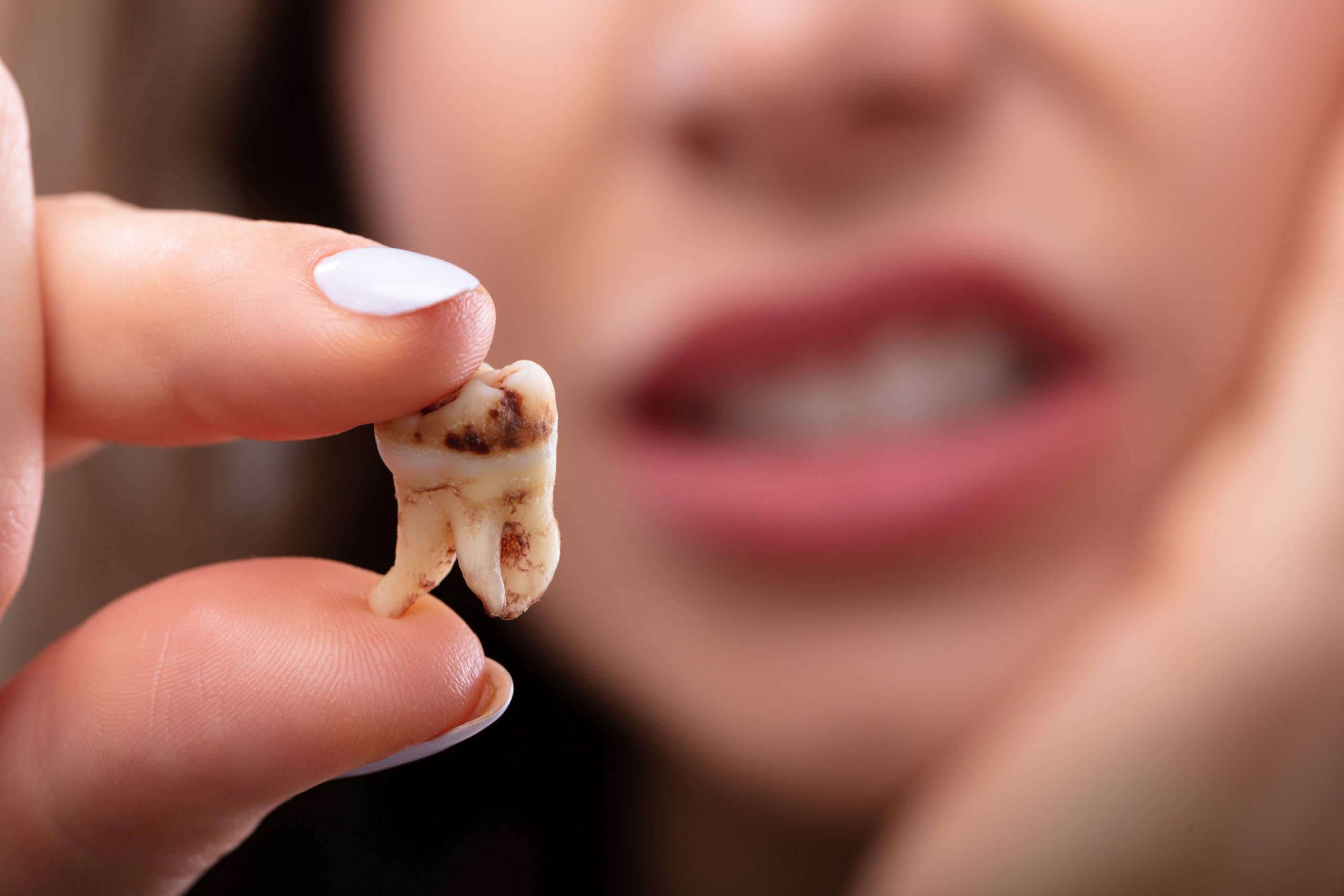 Close-up Of A Woman's Hand Holding Decay Tooth