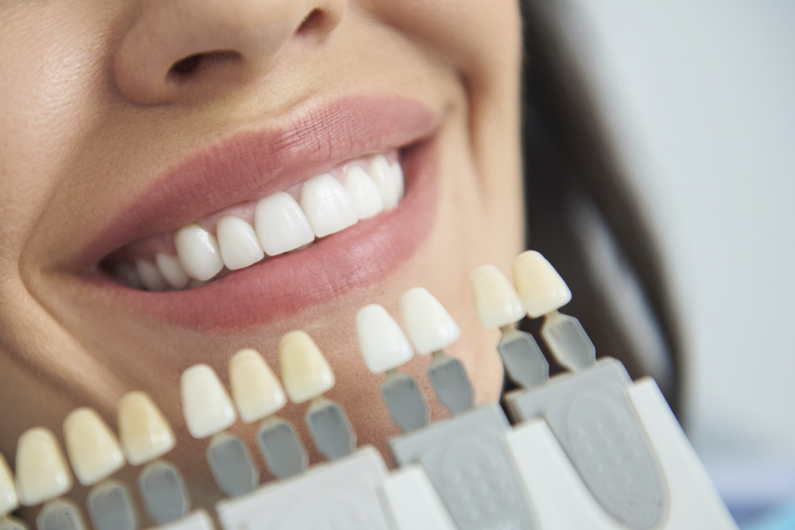 Close up mouth of smiling woman with dental crown situating near it